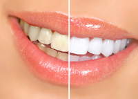Venice FL Teeth Whitening